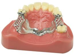 Aesthetic Partial  Dentures